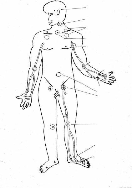 Систоло диастолическая артериальная гипертензия что это такое
