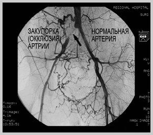 Атеросклероз аорты симптомы