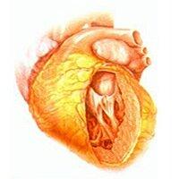 Что такое гипертония левого желудочка принципы развития патологии методы ее диагностики и лечения