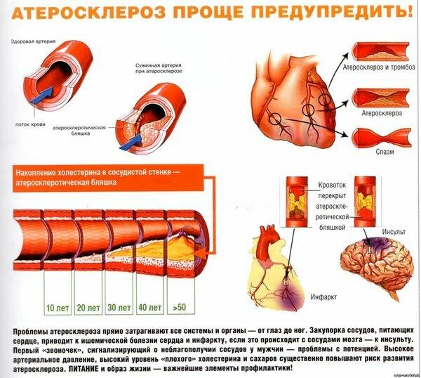 Диета при атеросклерозе сосудов головного мозга меню на неделю