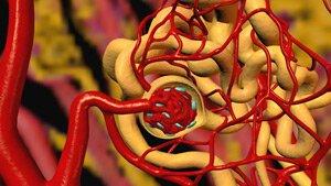 Лечение гипертонии при заболевании почек