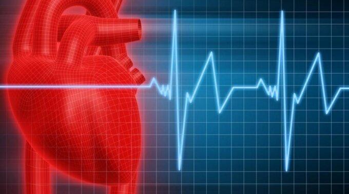 Тахикардия сердца: виды, симптомы, причины и лечение