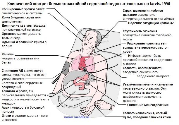Застой желчи при беременности симптомы и лечение