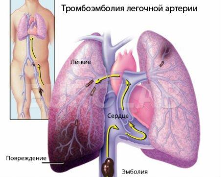 Сердечно легочная недостаточность ⋆ Лечение Сердца