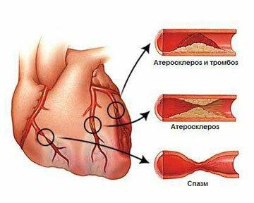 холестерин липопротеидов высокой плотности повышены