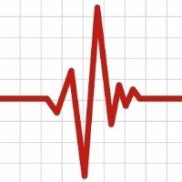 zheludochkovaja tahikardija prichiny 1 - Ventrikuläre Tachykardie Ursachen - Herzbehandlung
