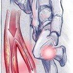 Атеросклероз суставов нижних конечностей