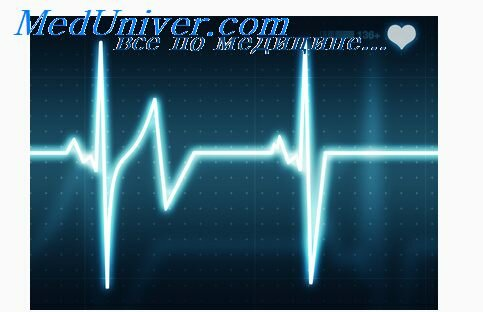 infarkt miokarda anginoznyj 1 - Forma angina de infarto de miocardio - aprenda a reconocer y ayudar