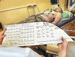 Преходящая мерцательная аритмия - Лечение гипертонии