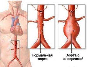 Атеросклероз грудного отдела аорты