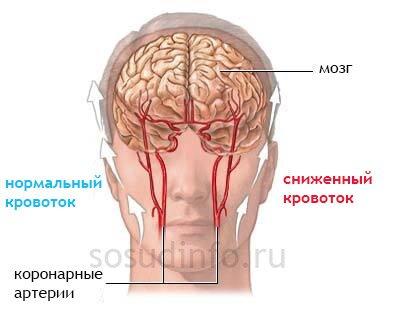 Остеохондроз пояснично - крестцового отдела позвоночника