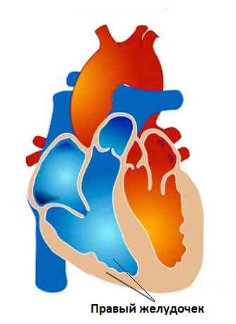 legochnoe serdce simptomy 1 - Causas del corazón pulmonar ⋆ Tratamiento del corazón