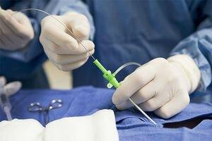 Диета после операции по стентированию сосудов сердца
