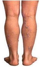 Лекарства при тромбофлебите глубоких вен нижних конечностей симптомы