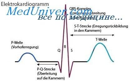 Наджелудочковая пароксизмальная тахикардия на экг