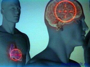 Инсульт и инфаркт от чего бывает