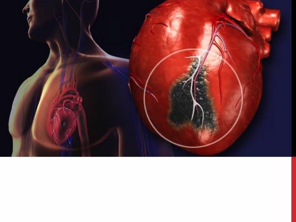 Как сделать чтобы случился инфаркт
