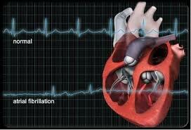Мкб 10 пароксизмальная мерцательная аритмия ⋆ Лечение Сердца