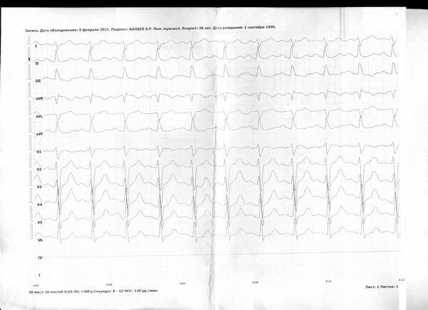Синусовая тахикардия - что это такое.  Синусовая тахикардия у взрослых и детей, нормы сердцебиения на ЭКГ.