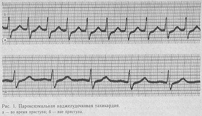 Пароксизмальная тахикардия причины ⋆ Лечение Сердца