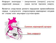 Приступ гипертонии симптомы - Лечение гипертонии