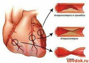 Доврачебная помощь при инфаркте миокарда алгоритм действий
