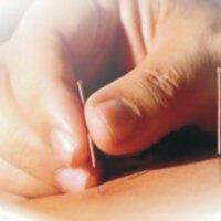 Противопоказания после инсульта ⋆ Лечение Сердца