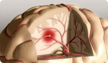 Профилактика инсульта и инфаркта народными средствами