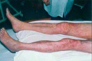 Атеросклероз нижних конечностей причины - Лечение Сердца