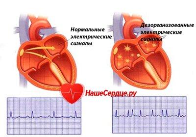 Лечение мерцательной аритмии сердца прогноз -