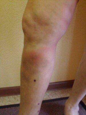 Снять опухоль ноги при варикозе