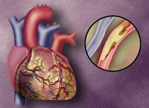Атеросклеротический атеросклероз ⋆ Лечение Сердца