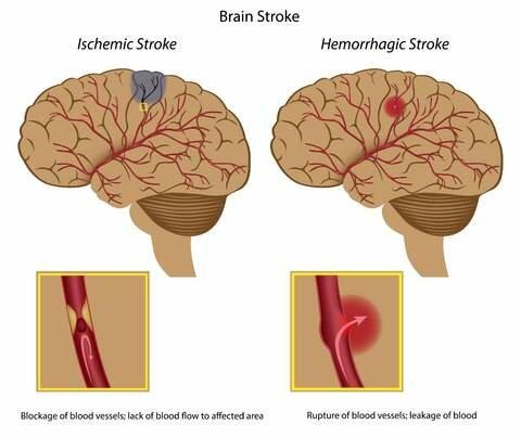 Как выглядят предвестники инсульта